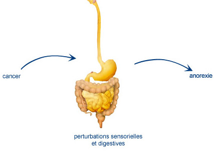 Cancer : Anorexie liée à des perturbations digestives